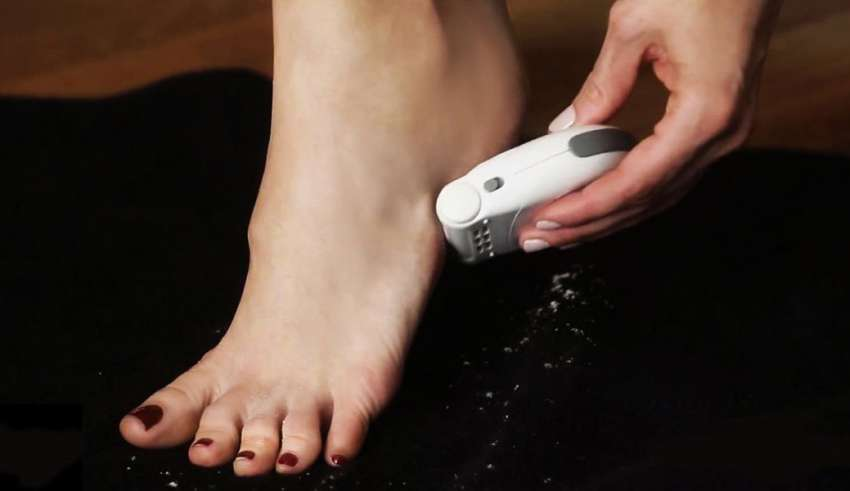 image feature Electric Foot Callus Removers